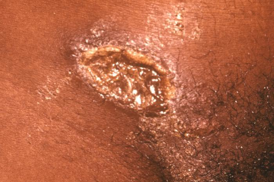 Chancroid infection