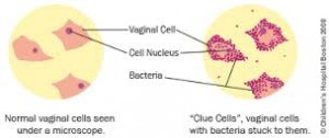 bacterial vaginosis cells