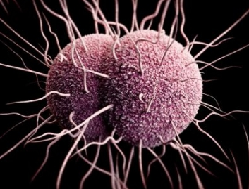 Gonorrhea information and help resource