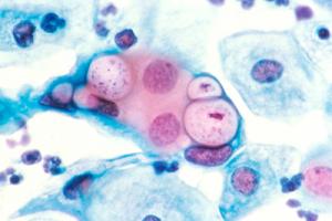 Lymphogranuloma