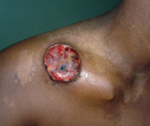 Lesion from Lymphogranuloma