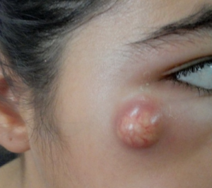 Molluscum contagiosum on young girl