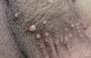 Molluscum contagiosum symptoms on penis
