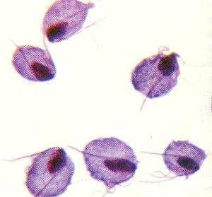 colony of Trichomonas organisms
