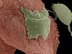 Microscopic view of the Trichomonas organism