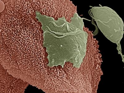 Trichomoniasis Pictures