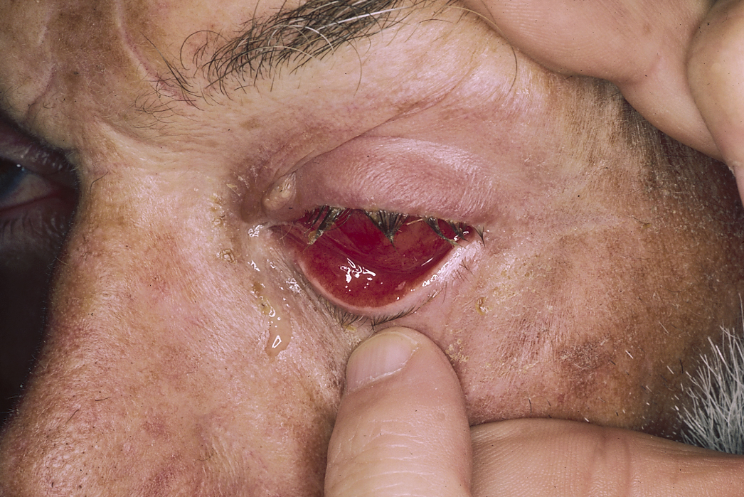 Gonorrhea of the eye