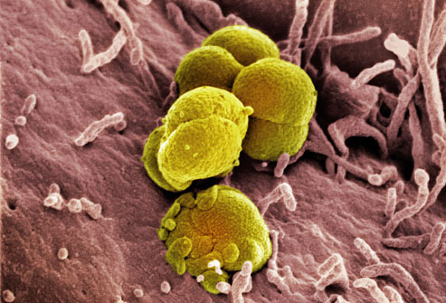 Images of Gonorrhea