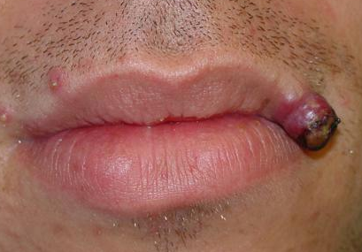 Pyogenic Granuloma on mouth