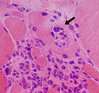 Microscopic view of Granuloma Cells