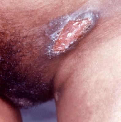 Symptom of Granuloma on vagina