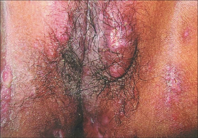 Granuloma on Vagina