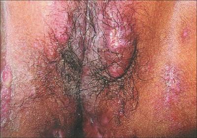 Granuloma on Vagina