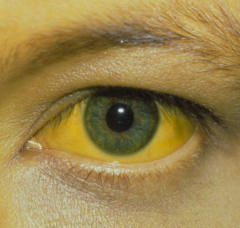 Hepatitis with Jaundice in eyes
