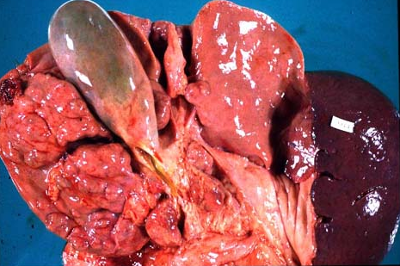 Liver with Hepatitis damage