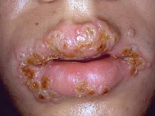 Herpes on the lips