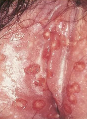 HSV 2 in female genitals