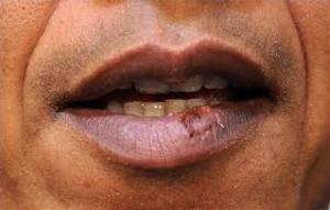 Herpes Simplex Virus 1