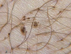 Crab infection in caucasia hostn