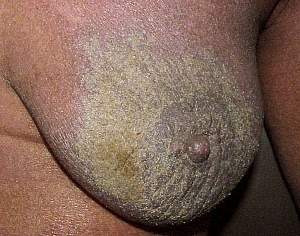 Crusted Scabies condition