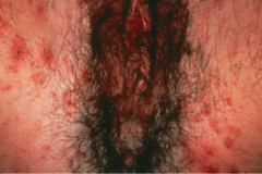 Female Scabies infection