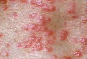 Symptom of Scabies