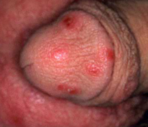 Penis with Scabies