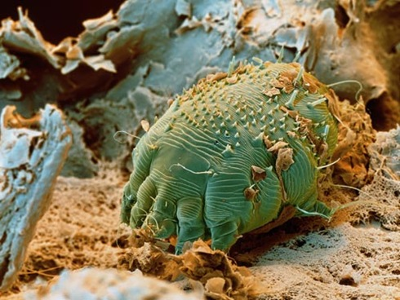 Scabies Information