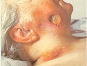 Chronic syphilis infection