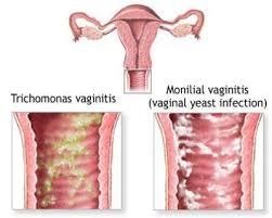 vaginitis1