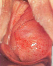 Atrophic Vaginitis in female cervix