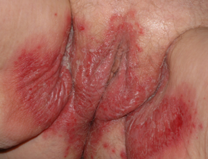 Child with Vaginitis
