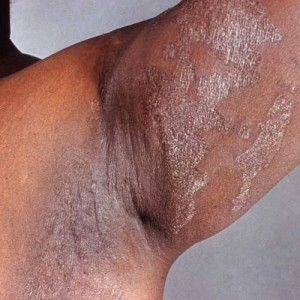 Candida overgrowth under arm
