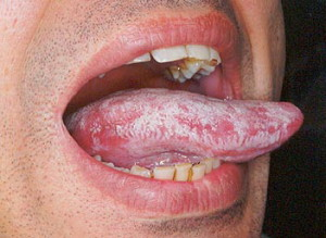Overgrowth of candida in mouth
