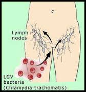 Lymphogranuloma information