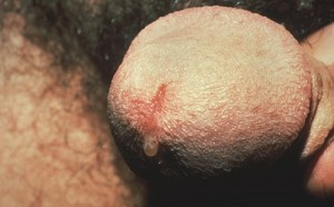 nongonococcal urethritis male